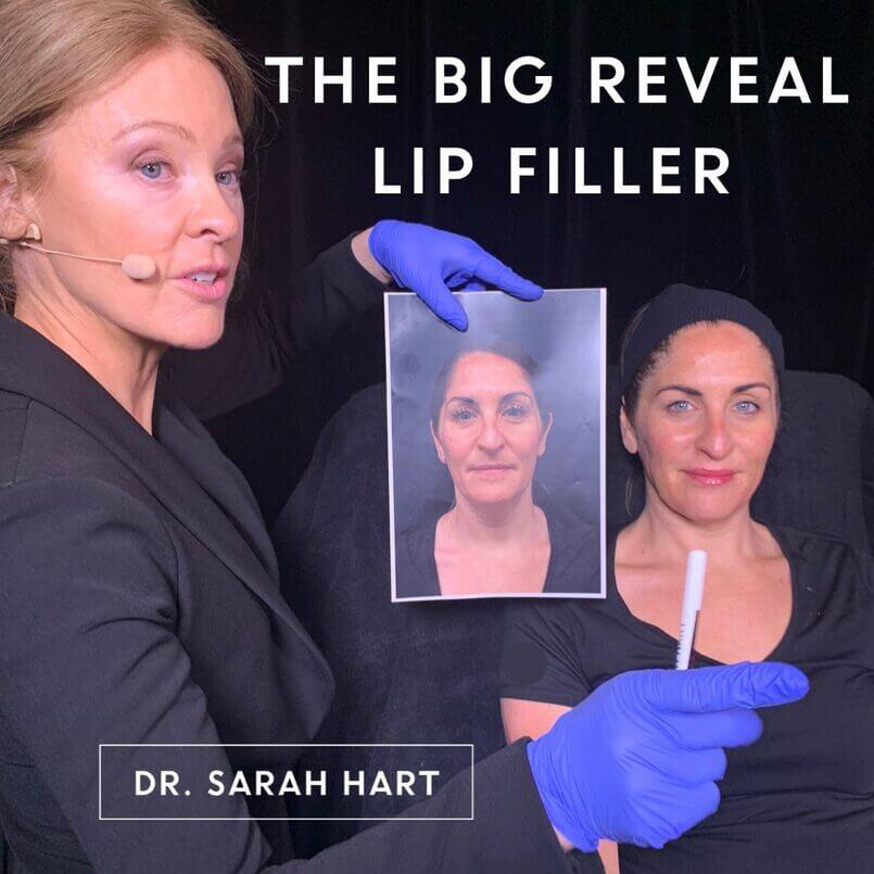 Dr Sarah Hart cosmetic doctor demonstrating lip filler
