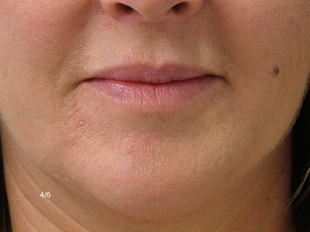 Lip Enhancement - After Treatment