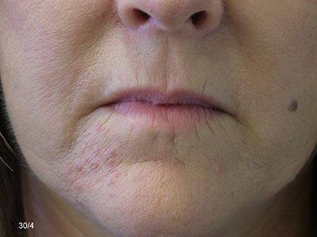 Lip Enhancement - Before Treatment