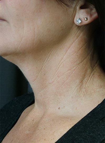 Neck Treatment - Before