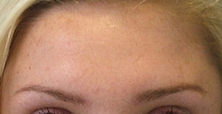 forehead-after-botox-at-rest