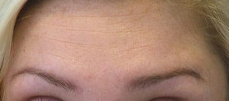 forehead-after-botox-raising-brows