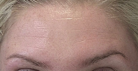 forehead-before-botox-at-rest