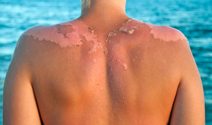 Bad sunburn with skin peeling