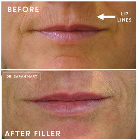 Before and after shots of lip lines