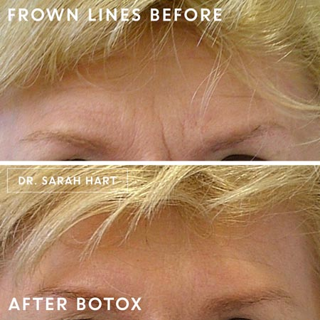Frown lines, before and after Botox