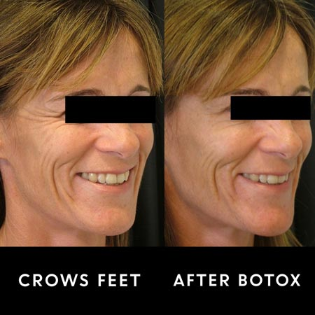 Crows feet before and after botox