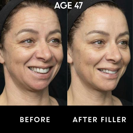 47 year old woman before and after botox and filler