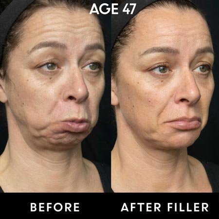 47 year old female patient before and after botox and filler