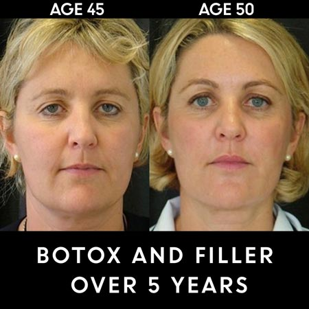 Botox results over 5 years