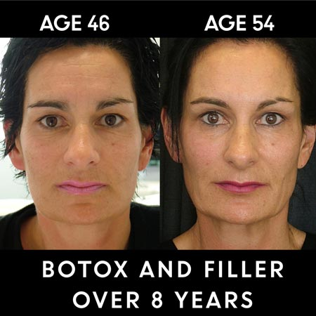 Botox filler results on woman over 8 years