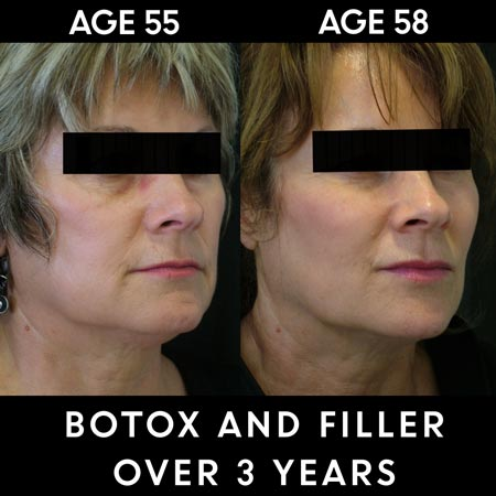 Botox and filler results over 3 years
