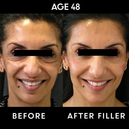 Botox and filler results before and after