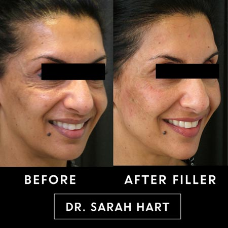 Female patient's Botox and filler results