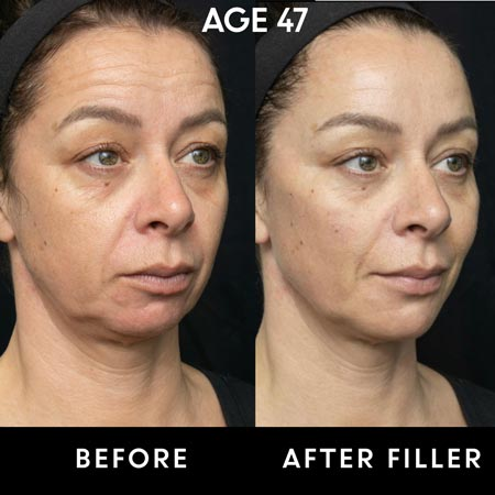 47 year old before and after cheek filler