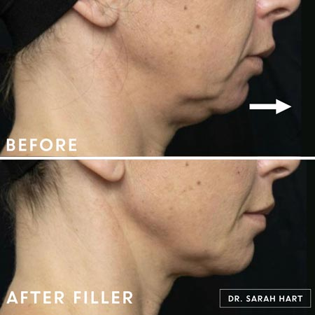 Before and after chin filler treatment