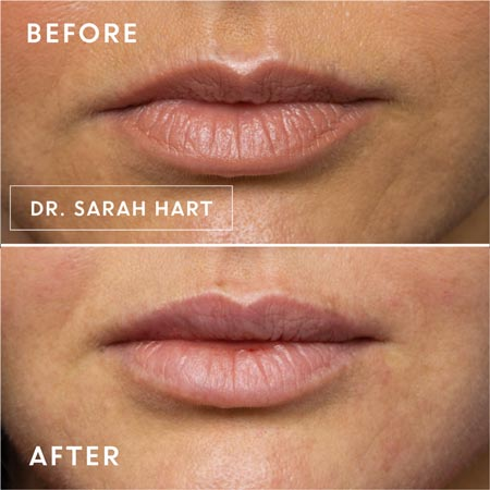 Lips before and after a dermal filler