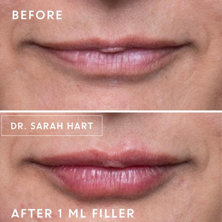 woman's Lips before and after a dermal filler