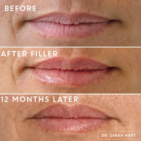 Lips before and 12 months after a dermal filler