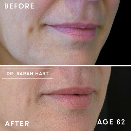 62 year old woman's lips Lips before and after a dermal filler