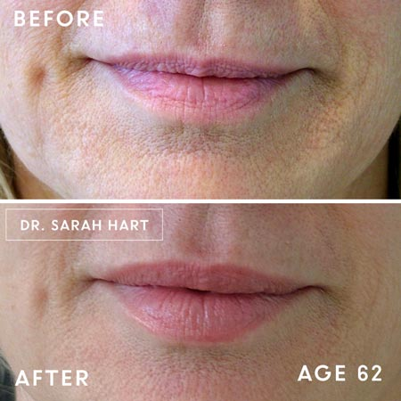 62 year old's lips before and after a dermal filler