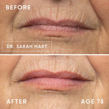 78 year old woman's lips before and after a dermal filler