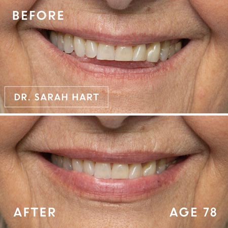 78 year old's lips before and after a dermal filler
