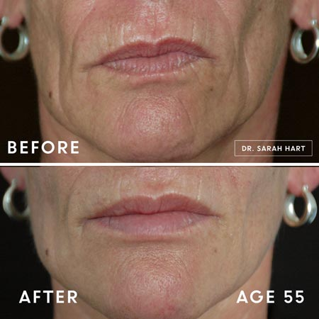 55 year old woman's lips before and after a dermal filler