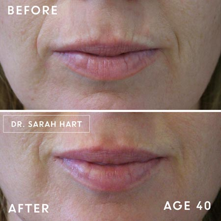 Lips of 40 year old woman before and after Botox treatment