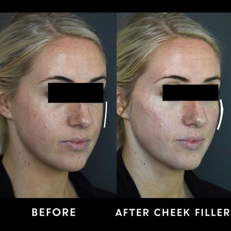 Female patient before and after cheek filler