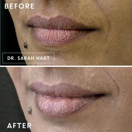 Female patient's lips before and after a dermal filler