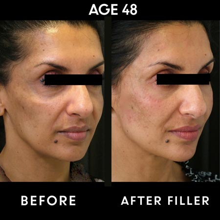 48 year old patient before and after cheek filler