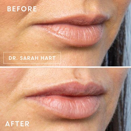 Female's lips before and after a dermal filler
