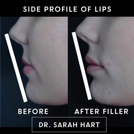 Side profile of dermal filler before and after