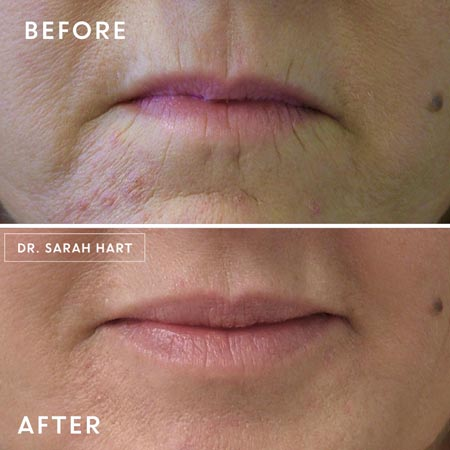 Lip lines before and after Botox