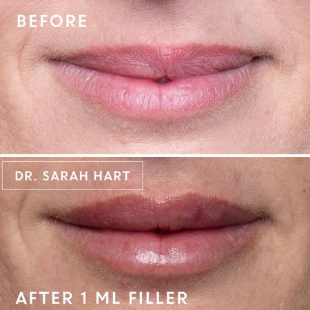 Dermal filler treatment before and after photo