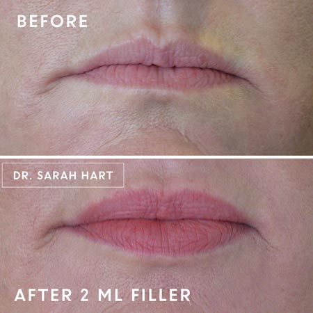 Dermal filler 2ml treatment before and after photo