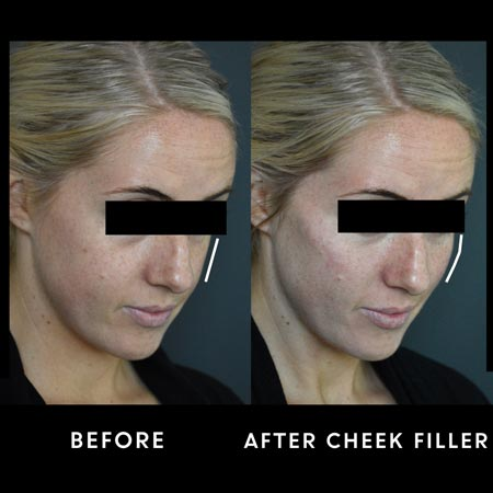 Woman before and after cheek filler