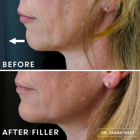 Female patient before and after chin filler