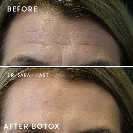 Forehead before and after botox treatment
