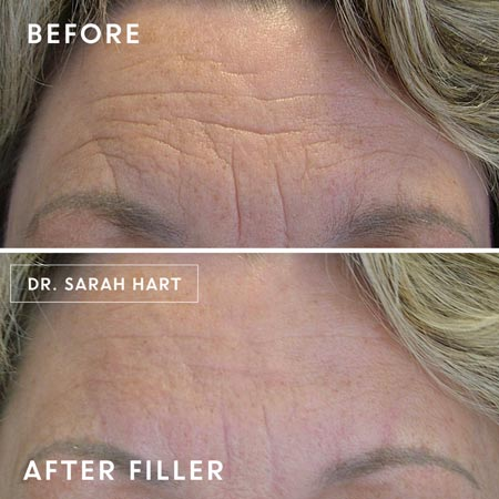 Juvederm before and after treatment on forehead