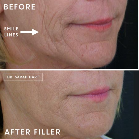Juvederm before and after treatment on smile lines