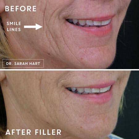 Juvederm before and after treatment on patient