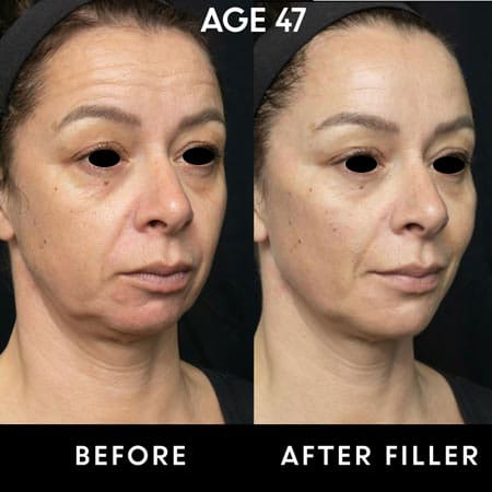 Before and after shots of 47 year old woman with botox filler