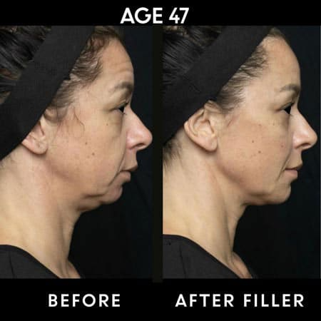 47 year old woman before and after botox - side view