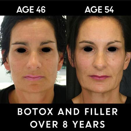 Botox results over 8 years