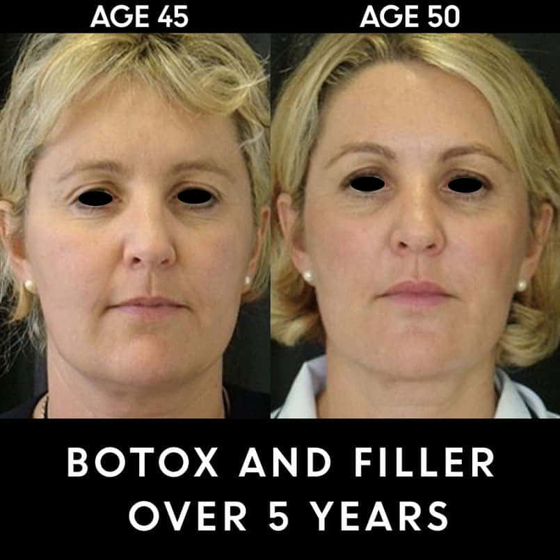Before and after Botox and Filler