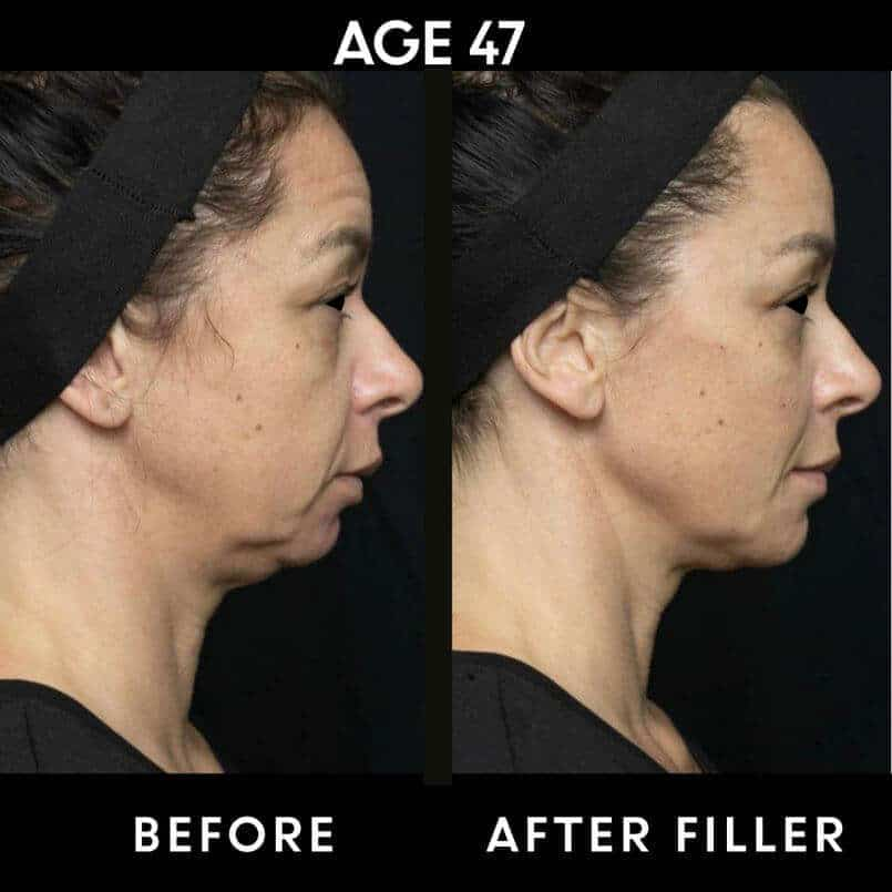 Before and after Filler