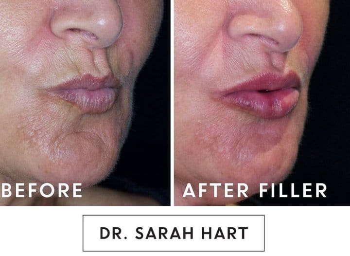 lips_before_and_after_juvederm
