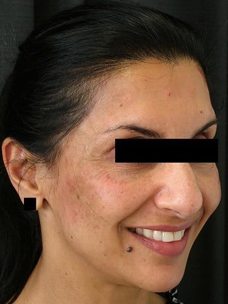tired_eyes_after_juvederm
